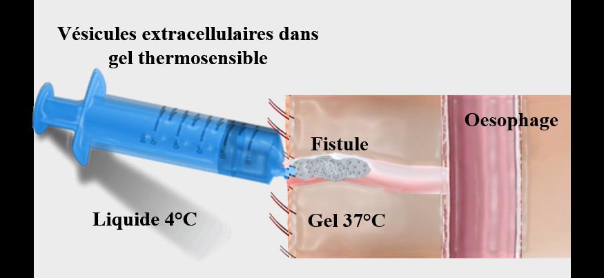 Traitement pour les fistules digestives
